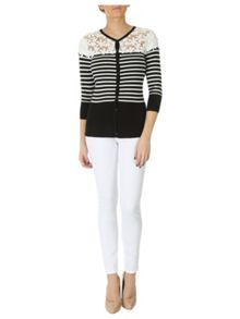 Lace Panel Striped Cardigan