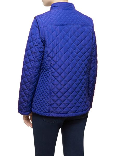 Dash Short Zip Off Quilted Coat